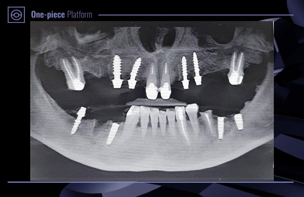 SGS P9S One-piece implant